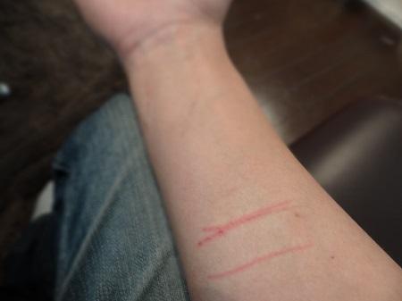 手首の近くの傷