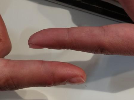 変わり果てた指